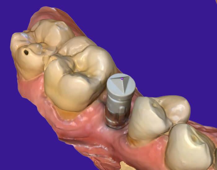 cerec for implants