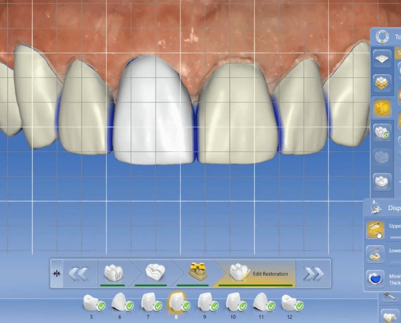 smile design veneer